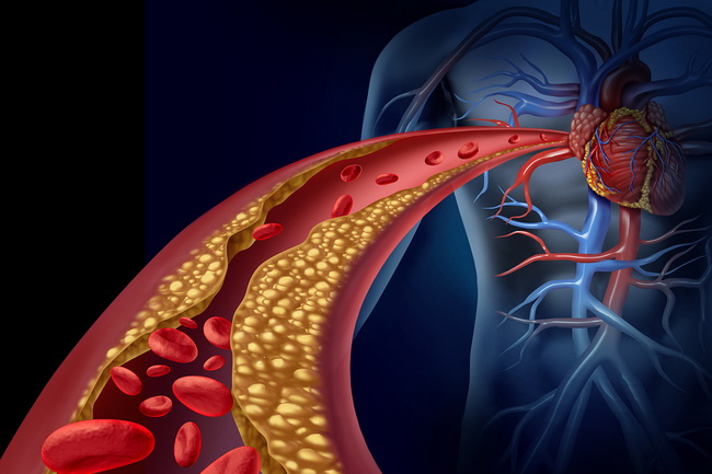 Clear out the arteries - Who should buy the oxidized cholesterol strategy?