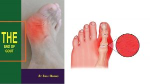The End of Gout review Program