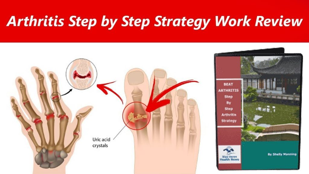 Arthritis Strategy Review